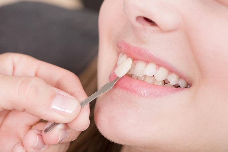 dentalveneers